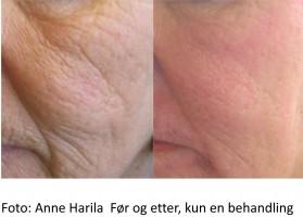 Skin Firming / Wrinkles