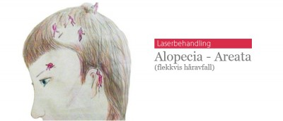 Patchy hair loss (alopecia areata)