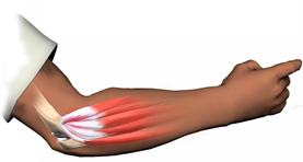 Arm / Tennis elbow / Golf elbow